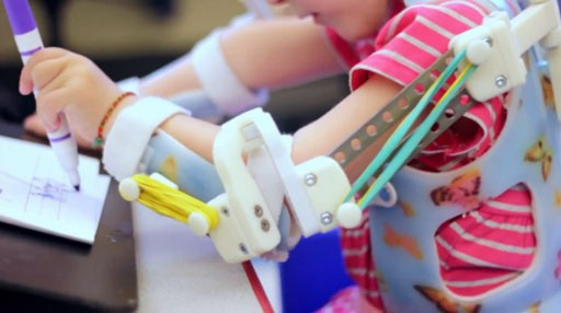 3D printing used to create exoskeletons that help disabled children walk and feed themselves